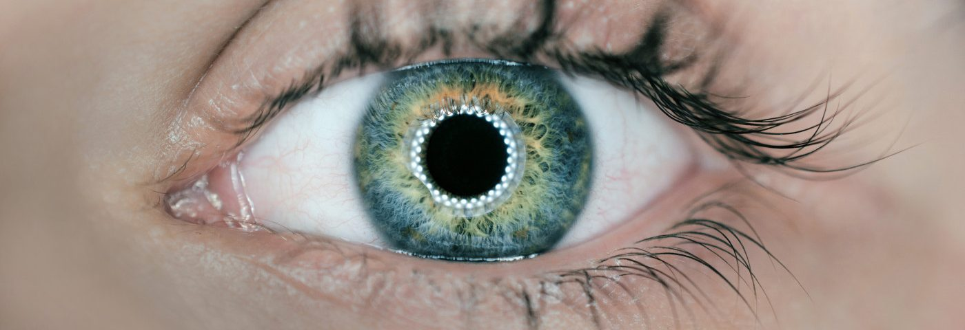 Cushing's Disease Might Lead to Ocular Hypertension, Case Report Suggests