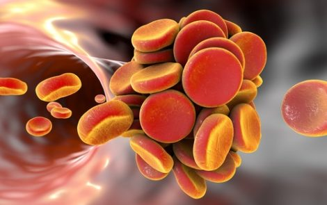 Blood Clot Risk in Cushing's Disease Patients May Extend Well Beyond Pituitary Surgery, Case Study Finds