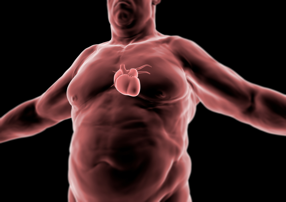 routine screenings, obese patients