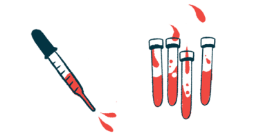 Metabolism | Cushing's Disease News | Illustration of test tubes and pipette